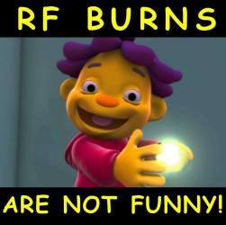 RF burn3.jpg